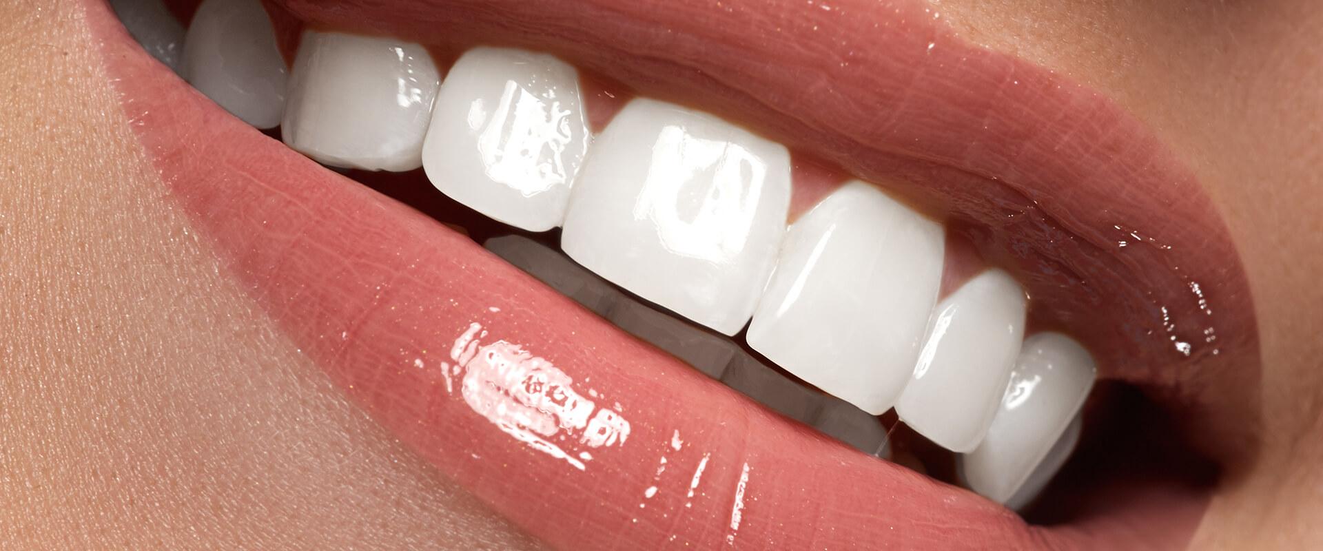 Lentes de Contato Dental e DSD (planejamento digital do sorriso) 9fdd622b89